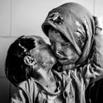 Mamă și copil au supraviețuit unui atac cu acid Foto Imgur