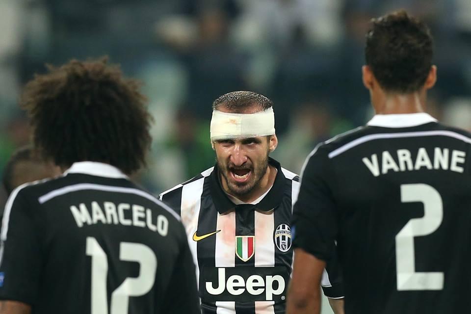Italianul Giorgio Chiellini a sângerat pentru splendida victorie a torinezilor în fața deținătoarei Ligii Campionilor (UEFA)