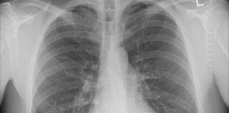 bpoc spirometrii gratuite plămân plămâni