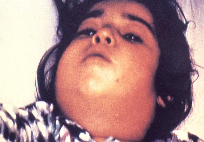 difterie
