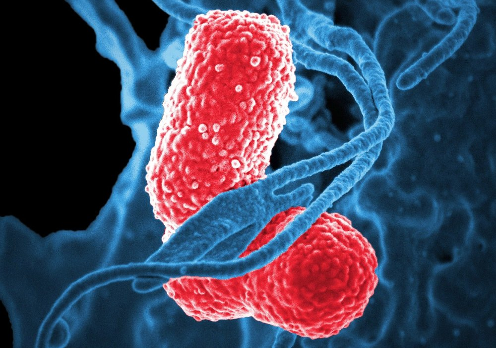 celulă cancer organism bacterie